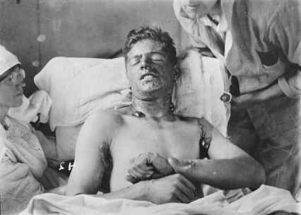 What all the fuss was about. A Canadian soldier from WW1 suffering from Mustard gas poisoning